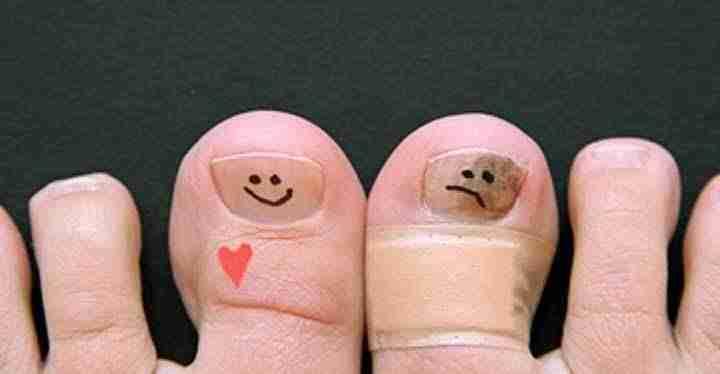 Los medios públicos del hongo de las uñas en los pies del pies